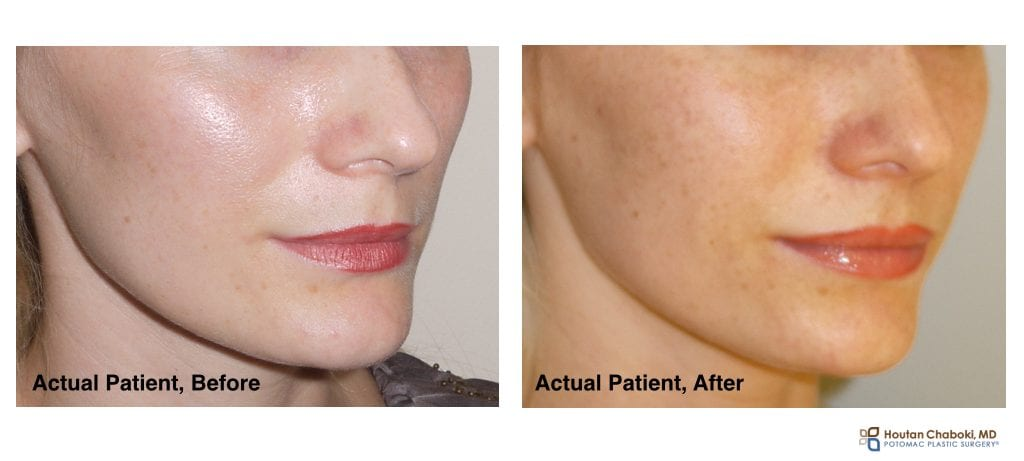 non-surgical, plastic surgery, cheek, filler, cosmetic