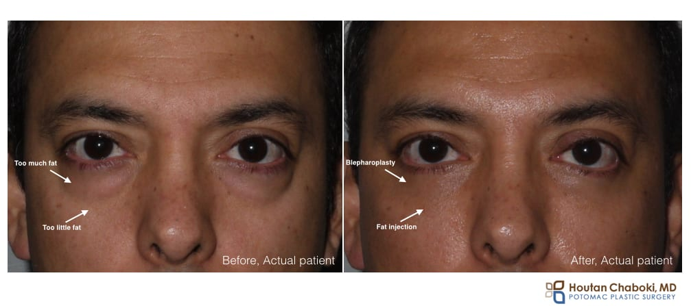 Lower blepharoplasty and fat injection - eye bags eyelid surgery