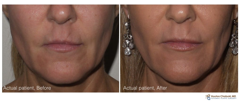 Lip injection with filler - before:after Restylane