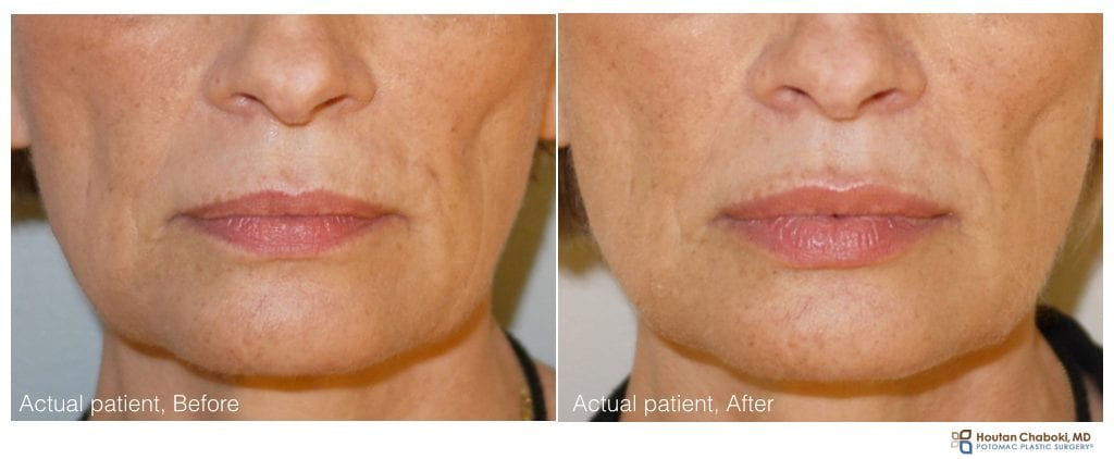 Lip injection with filler - before after - Juvederm