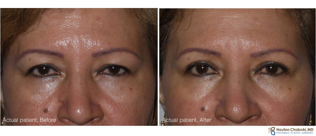 Upper eyelid surgery - before:after