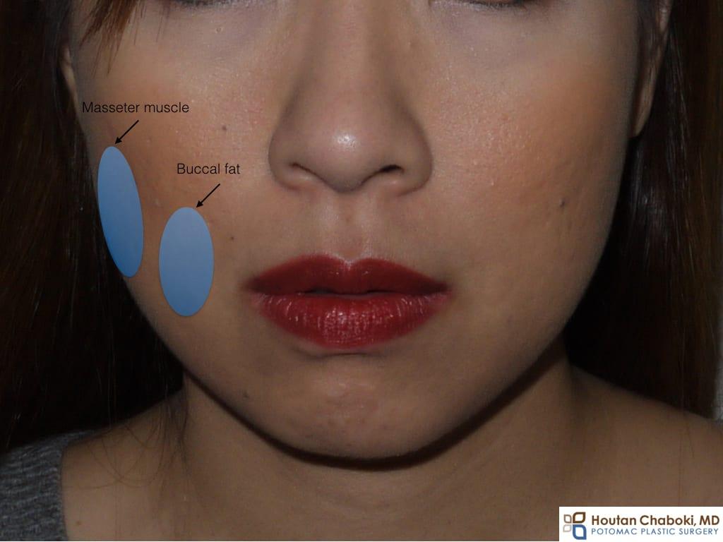 Buccal fat reduction Botox jaw master Washington DC