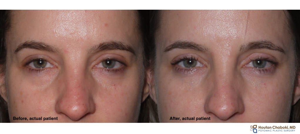 Lower eyelid facial filler bags tear trough Restylane