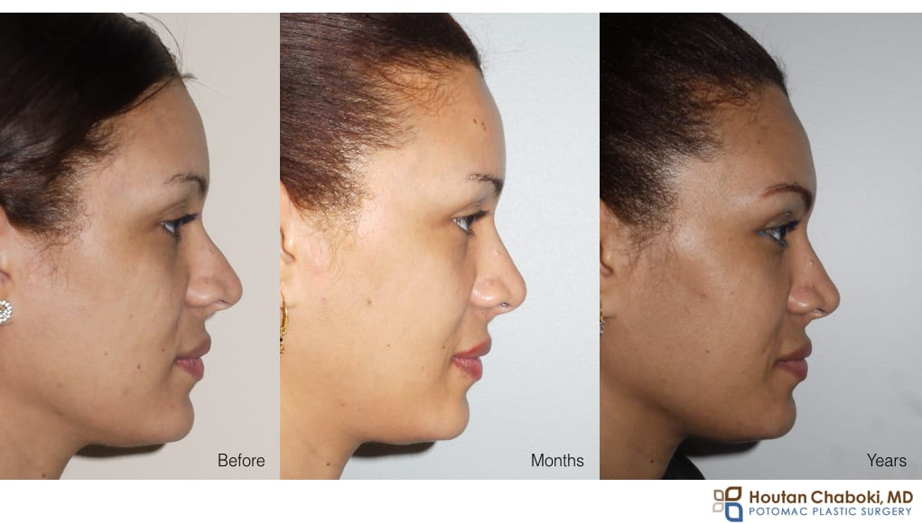 Before and After photo rhinoplasty swelling months years after surgery
