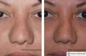 Before and after rhinoplasty nostril alar narrowing