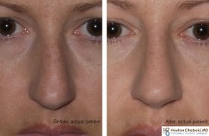 Before and after rhinoplasty septoplasty deviated nose