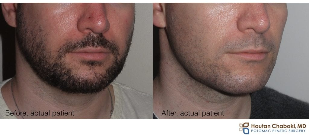 chin implant before after photos DC MD VA