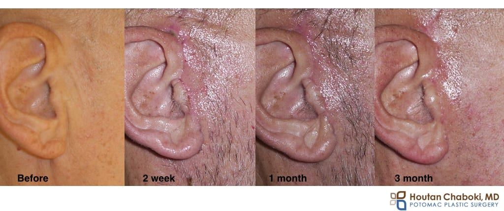 facelift neck lift scar incision healing time month year