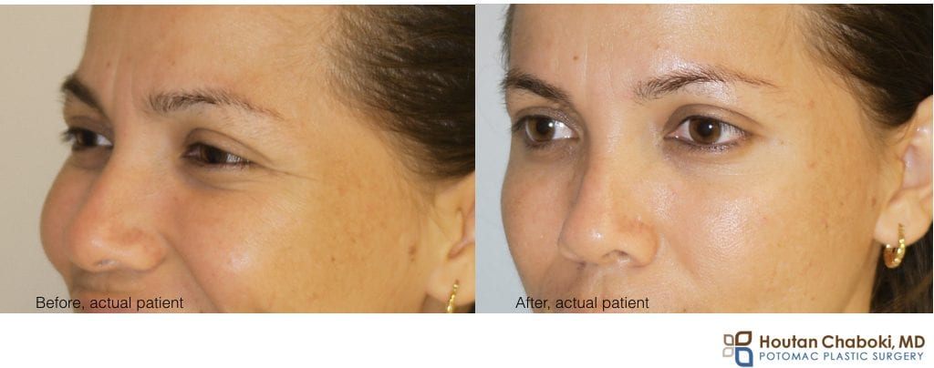 before after photo Botox brow lift nonsurgical eyebrow