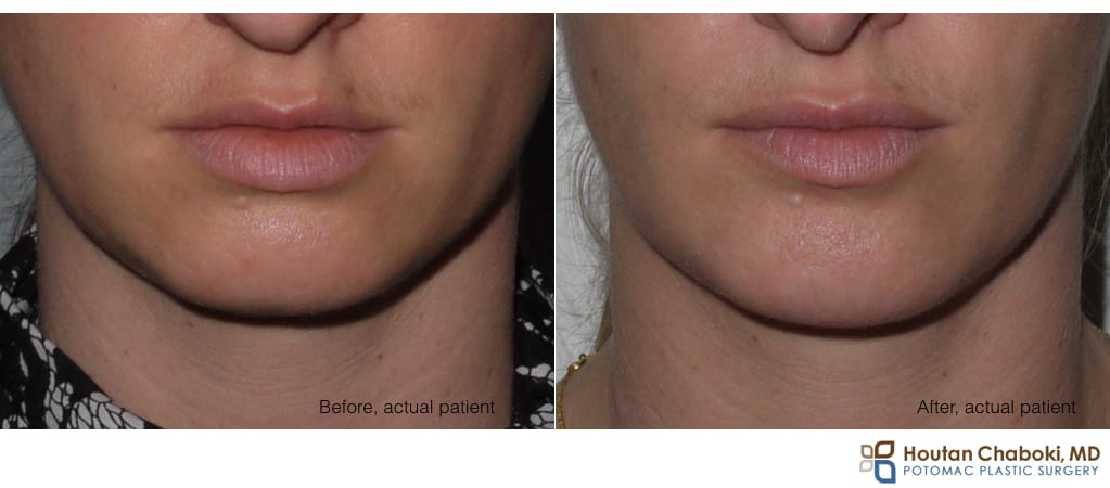 Blog post - before after phone chin augmentation silicon smiling smile scar