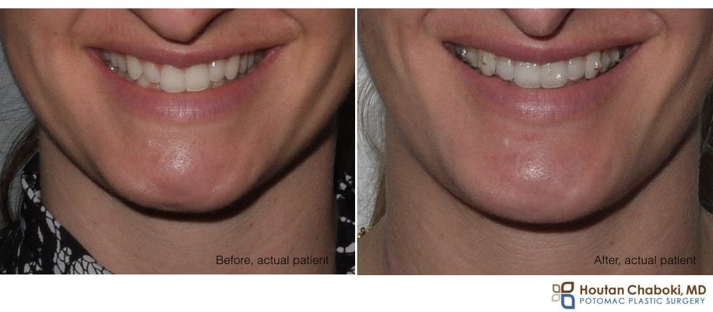 before after photo chin augmentation silicon smiling smile scar