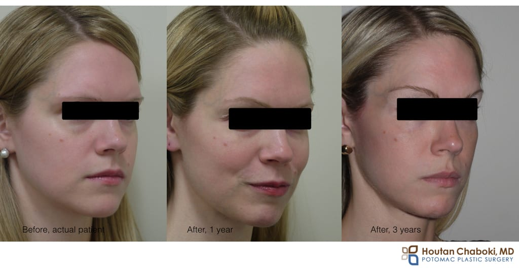before after photo Restylane lower eyelid bags dark circle