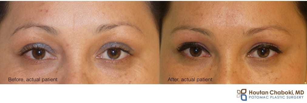 photo preventative Botox face wrinkle forehead skin anti aging
