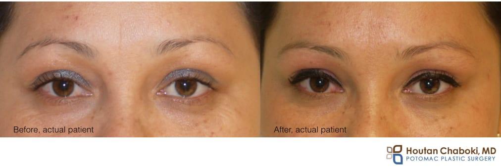 photo preventative Botox face wrinkle forehead skin anti aging