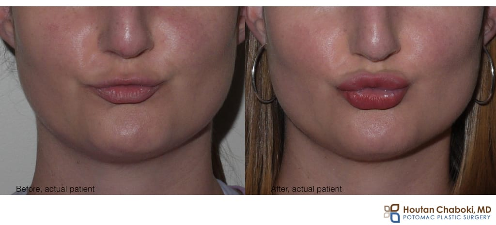 Blog post - before after lip enhancement augmentation injection facial filler kissing hyaluronic acid