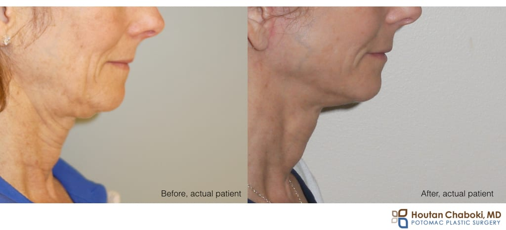 Blog post - before after photo facelift neck lift skin laxity plastic surgery.001