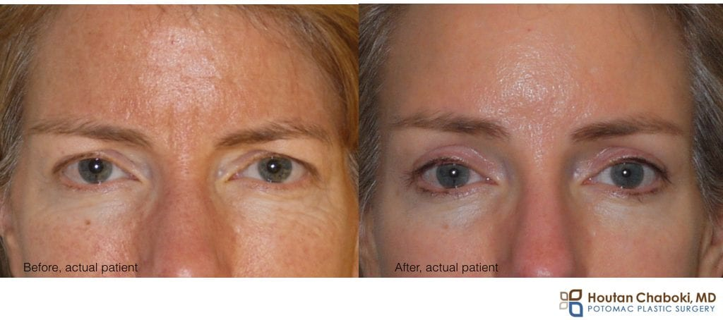 Blog post - before after photograph upper eyelid surgery forehead lift brow