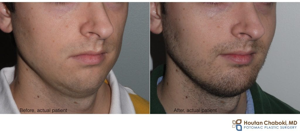 Blog post - before after photo cheek implant silicone plastic surgery