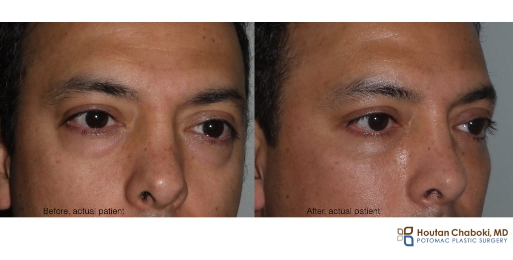 Blog post - before after photo fat transfer injection lip smile line lower eyelid cheek