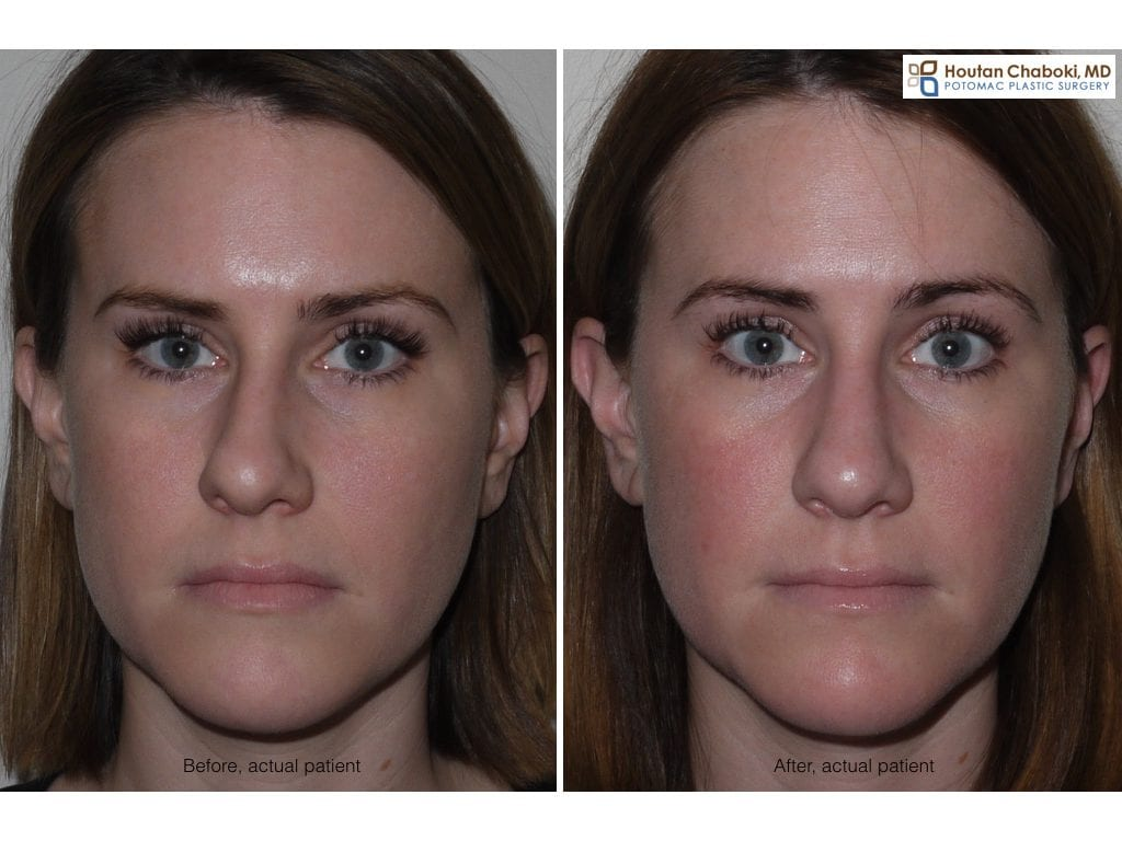 Blog post - before after septoplasty deviated septum closed rhinoplasty