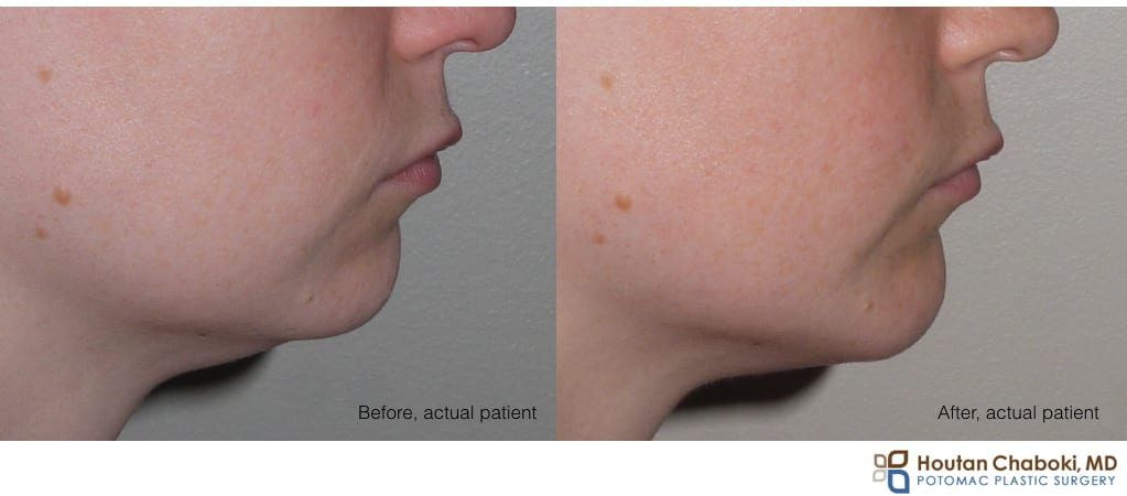 Blog post - before after chin augmentation plastic surgery implant silicone size large