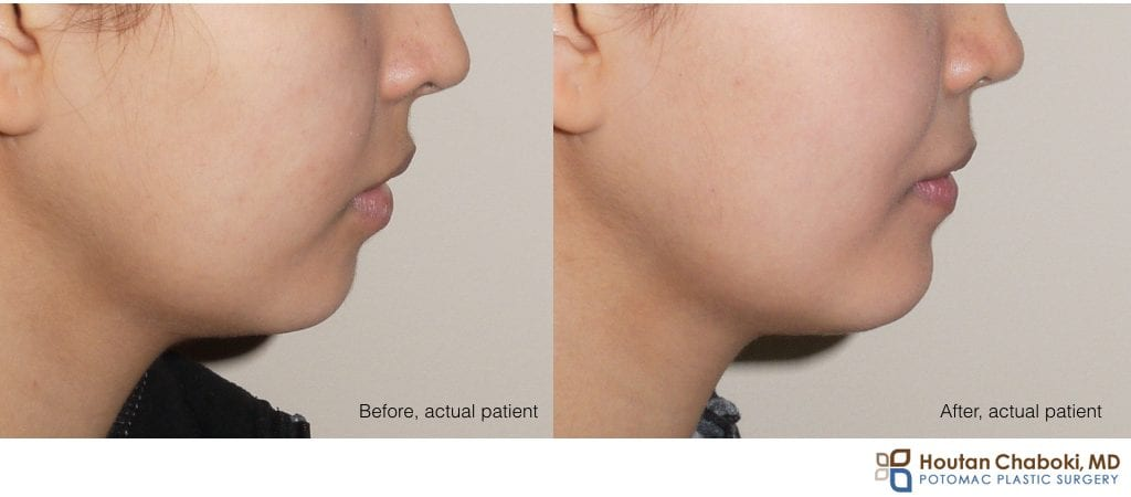 Blog post - before after chin augmentation plastic surgery implant silicone size medium