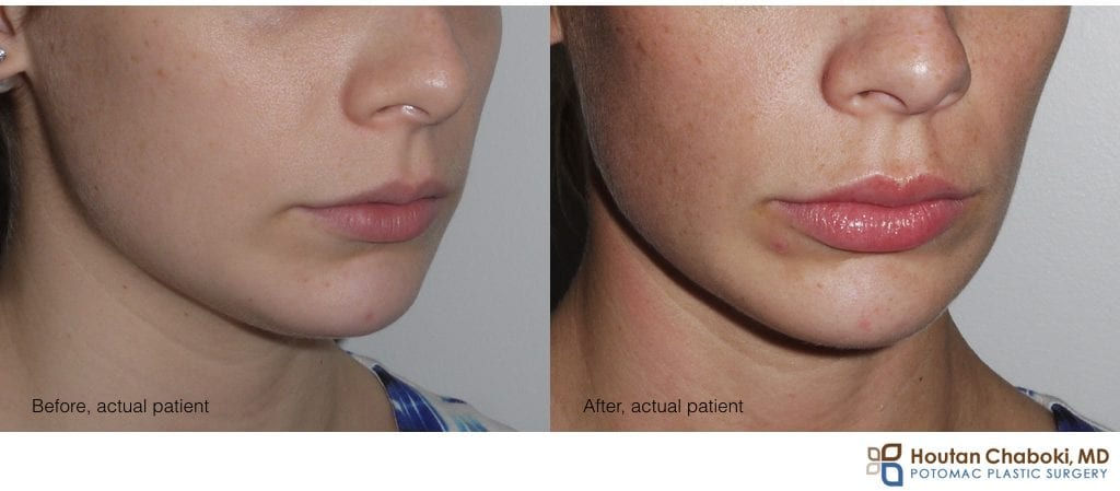 Blog post - before after lip injection hyaluronic acid Juvederm woman
