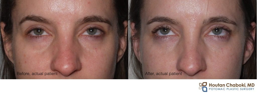 Blog post - before after photo puffy lower eye cosmetic