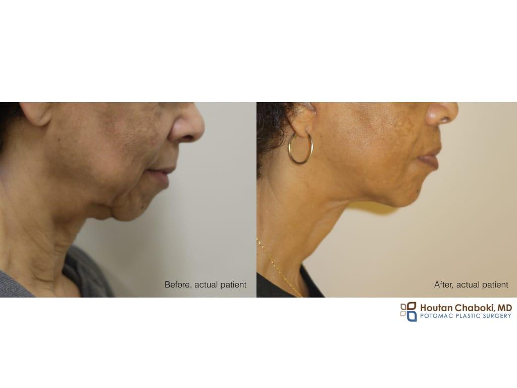 Blog post - facelift neck lift sagging skin chin implant