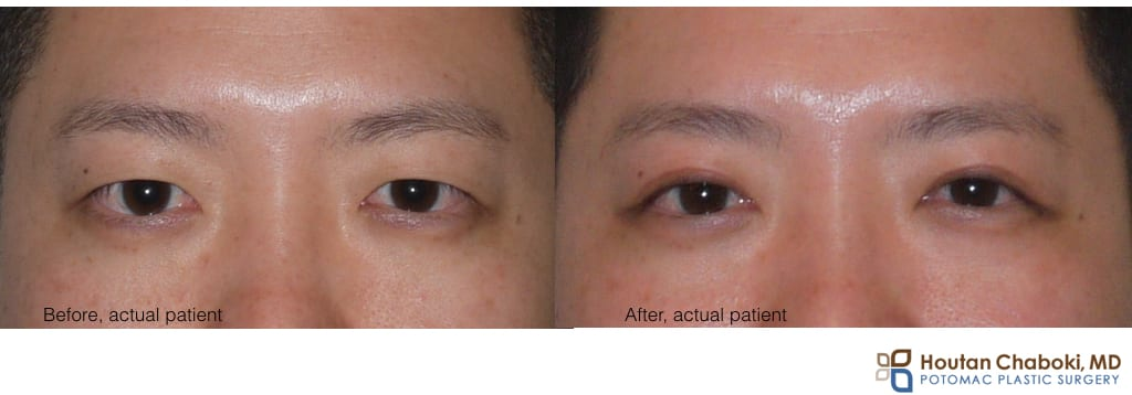Blog post - before after Asian blepharoplasty double eyelid surgery DC