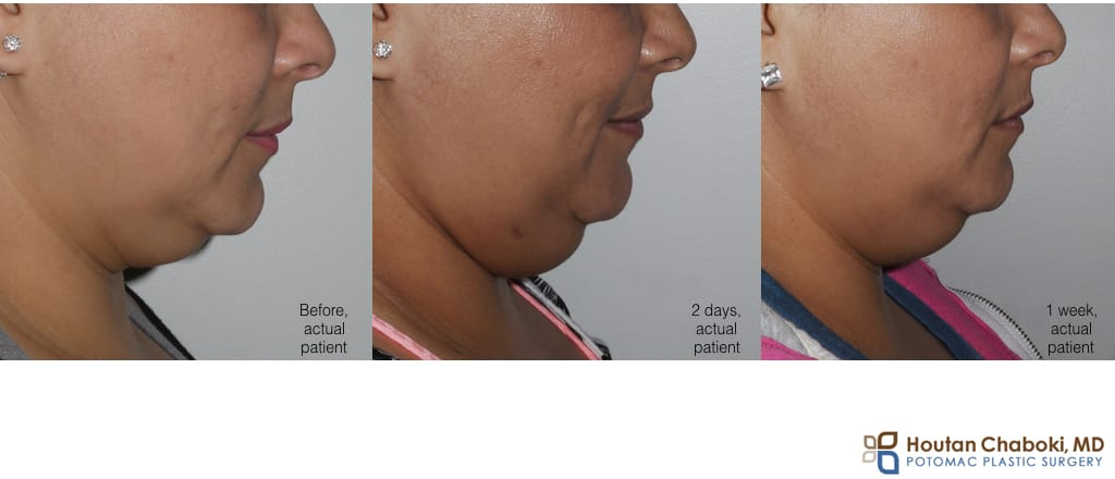 Blog post - before after photograph Kybella recovery submental fullness neck fat