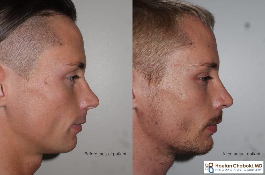 Blog post - male facial aesthetics rhinoplasty chin implant