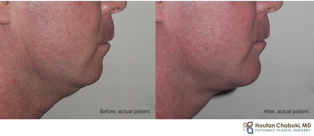 Blog post - male facial aesthetics chin implant liposuction