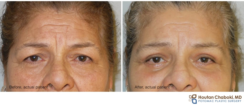 Blog post - before after brow lift upper lower eyelid surgery bleph Botox