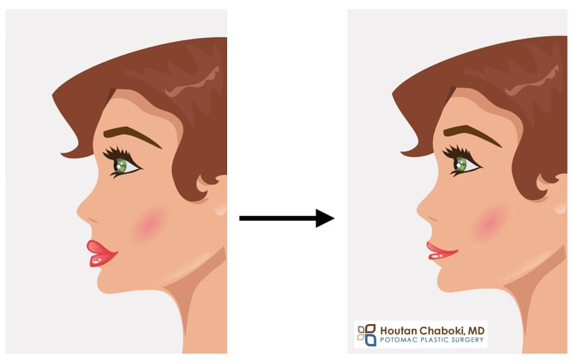 Blog post - hyaluronidase injection reverse HA facial filler