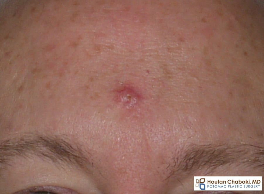 Blog post - basal cell skin cancer face plastic surgery