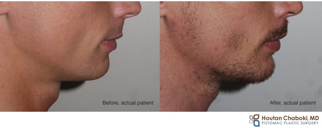 Blog post - before after chin augmentation silicone implant neck lift