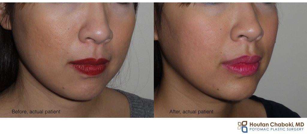 Blog post - before after liquid facelift cheek eye lip facial filler