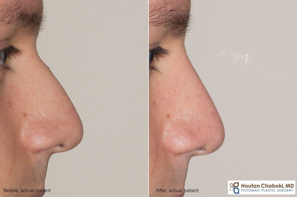 Blog post - before after nonsurgical rhinoplasty facial filler Restylane nose