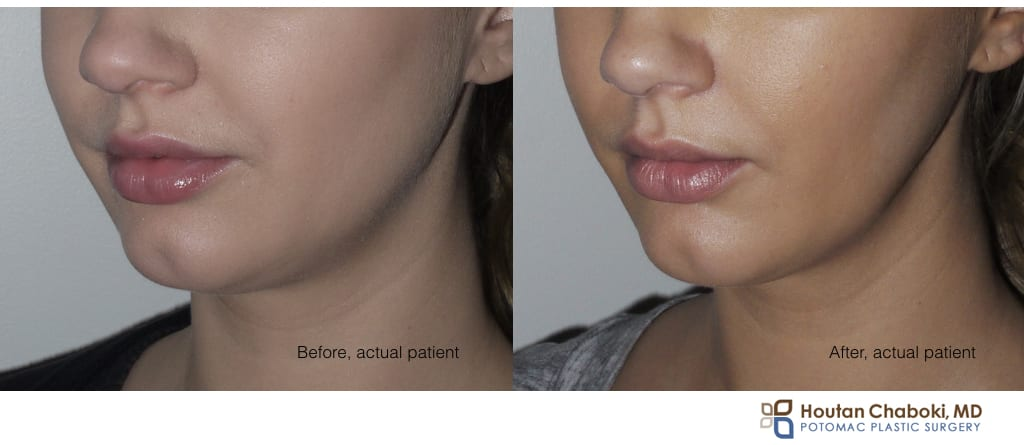 Blog post - before after Botox jaw reduction face neck