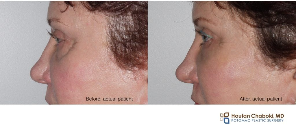 Blog post - before after photo liquid facelift HA filler