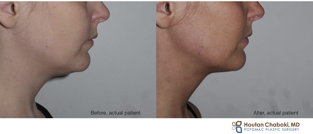 Blog post - before after Kybella nonsurgical neck fat reduction double chin