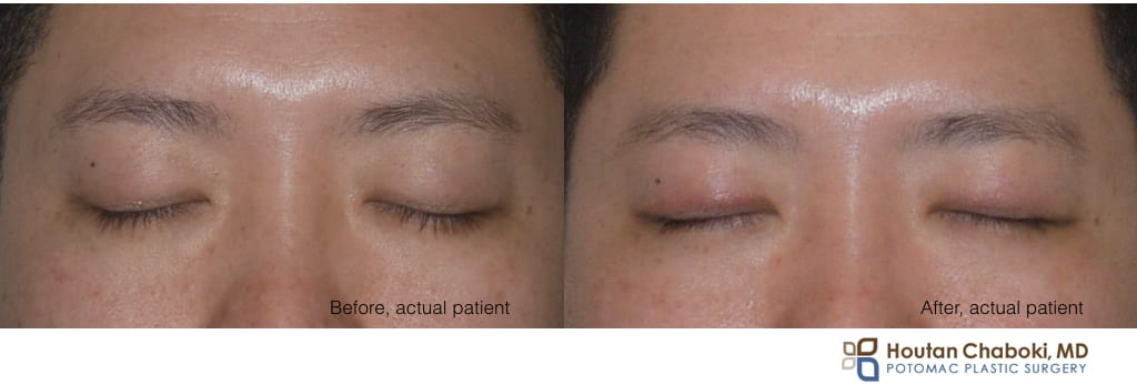 Blog post - before after photos double eyelid surgery Asian blepharoplasty