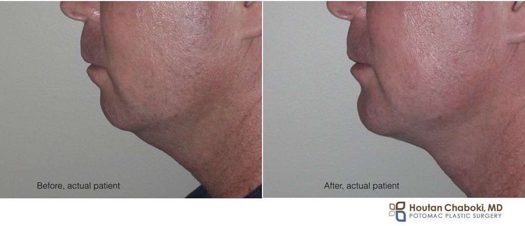 Blog post - before after photo overbite chin augmentation neck liposuction