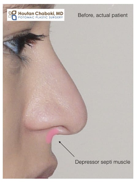 Blog post - depressor septi muscle droopy nasal tip