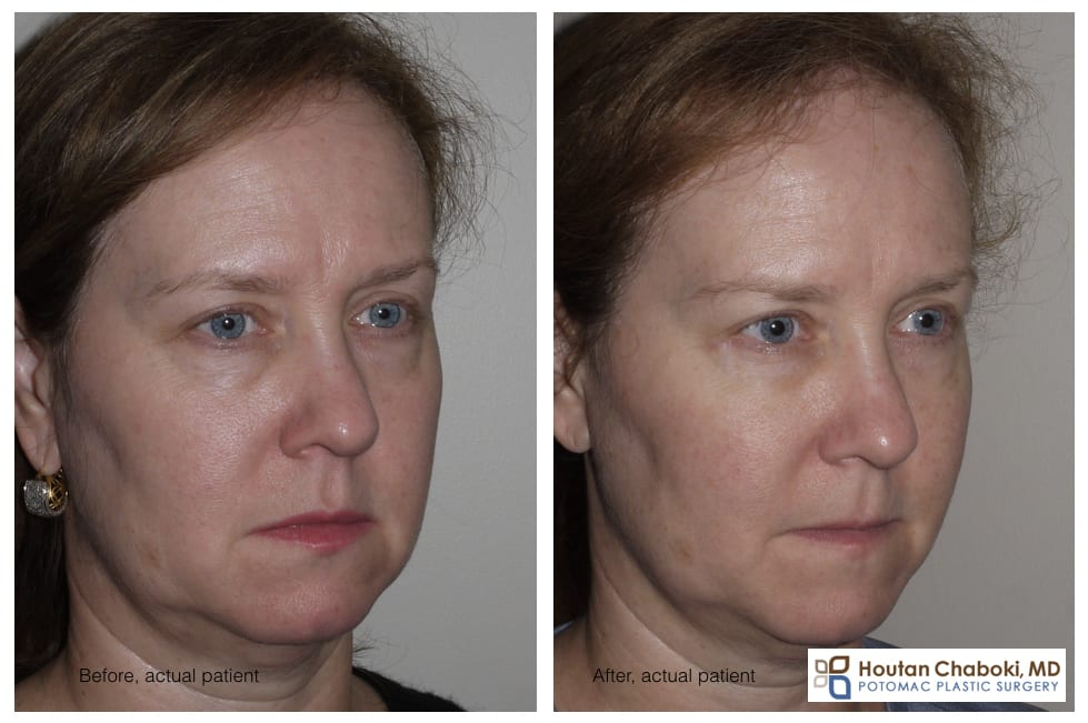 Blog post - before after photograph lower eyelid bag blepharoplasty surgery fat graft