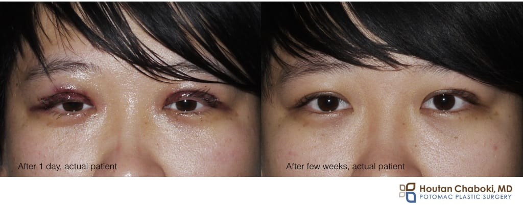Blog post - facial plastic surgery swelling before after
