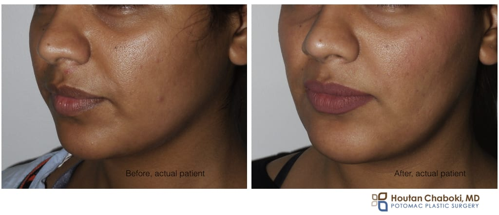 Blog post - before after buccal cheek fat reduction