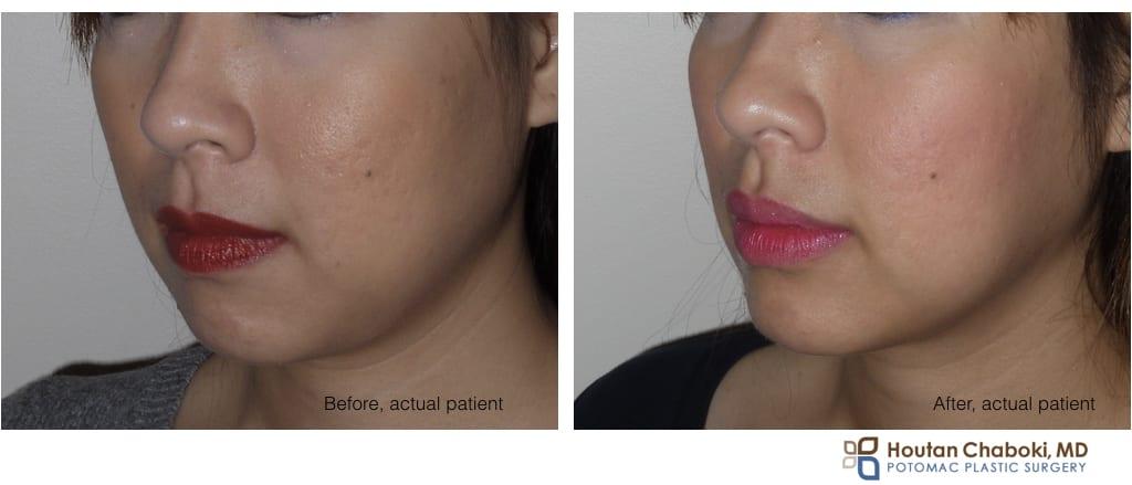Blog post - before after lip enhancment facial filler injection