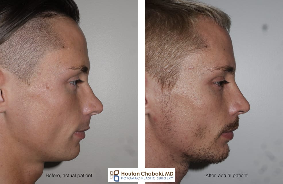 Blog post - before after radix graft rhinoplasty improve profile